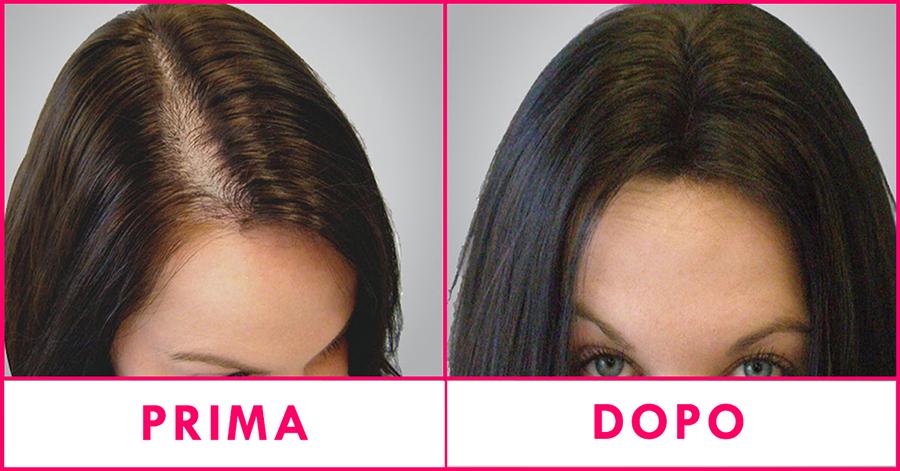 trattamenti-anticaduta-capelli-roma-malafemmina5